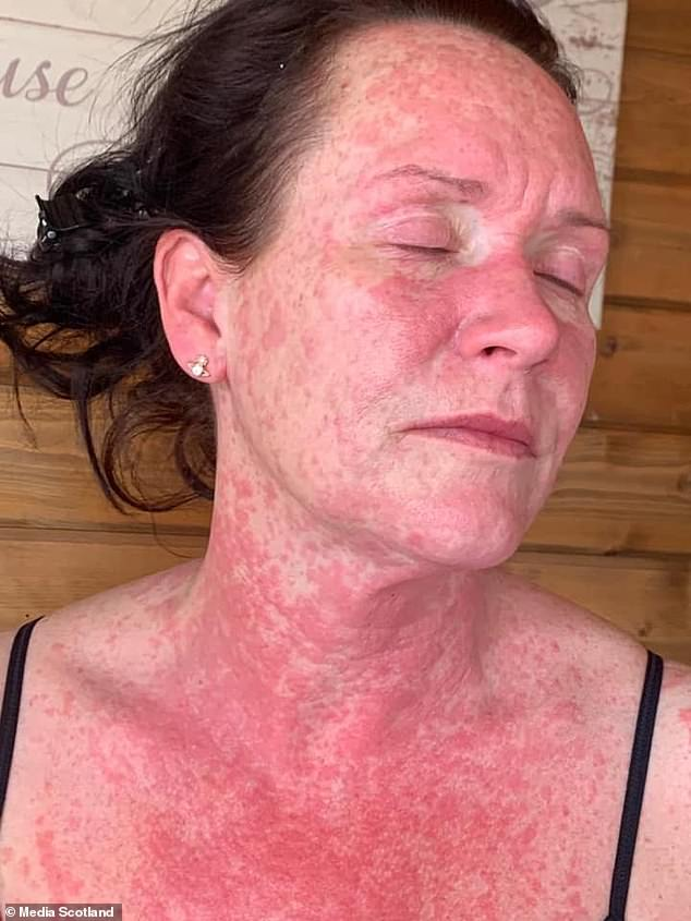 """Scotland: 41-year-old Leigh King breaks out in """"agonizing"""" full-body rash after AstraZeneca shot"""