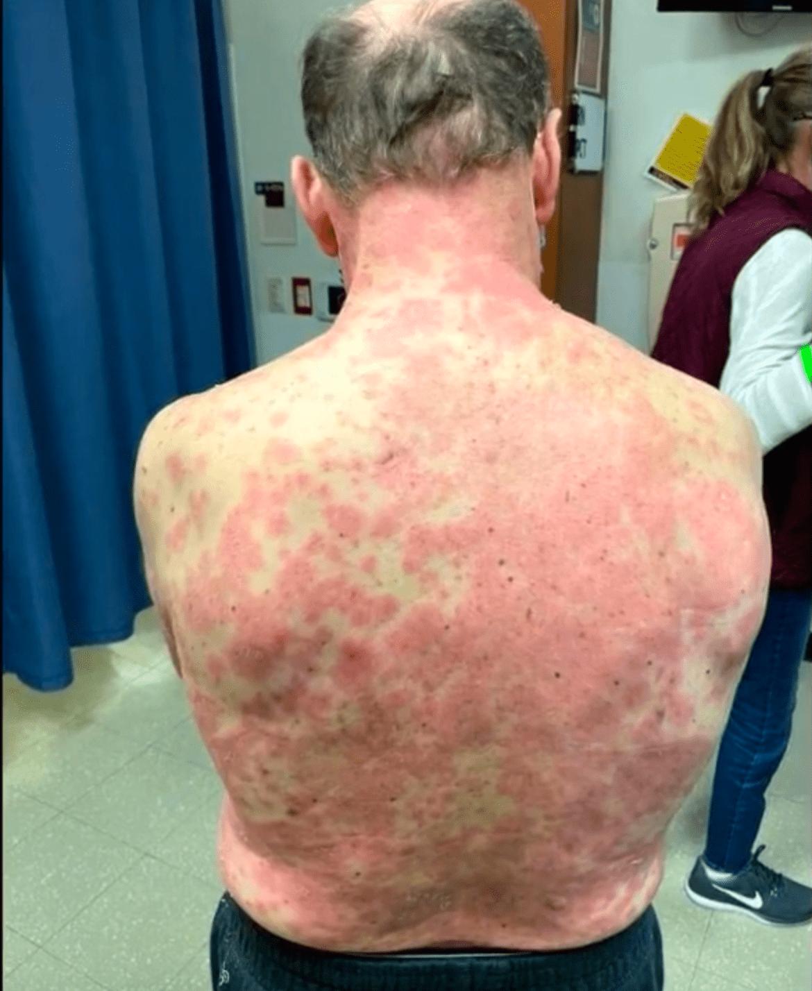 Richard Terrell: 74-year-old Virginia man gets full-body swelling, severe rash after Johnson & Johnson shot