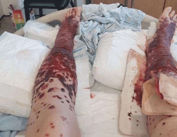 Sarah Beuckmann: 34-year-old Scotland woman suffers gruesome AstraZeneca adverse reaction