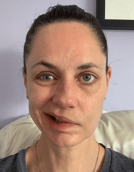 Jennifer Gibson: Canadian woman develops Bell's Palsy two weeks after AstraZeneca shot, encourages others to get vaccinated